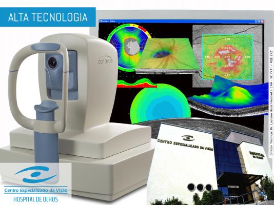 Alta tecnologia na tomografia 3D de coerência óptica
