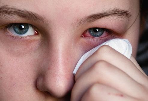 Como prevenir a alergia ocular