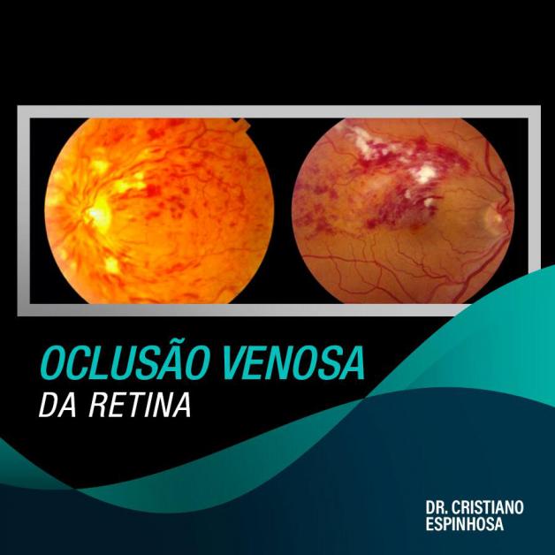 Saiba o que é a oclusão venosa da retina (OVR) e como preveni-la