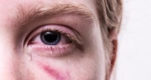 Prevenção é o melhor remédio para as alergias oculares.