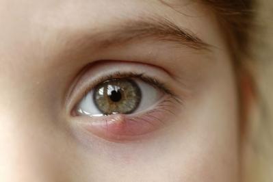 Terçol é uma inflamação comum mas que precisa de cuidado!