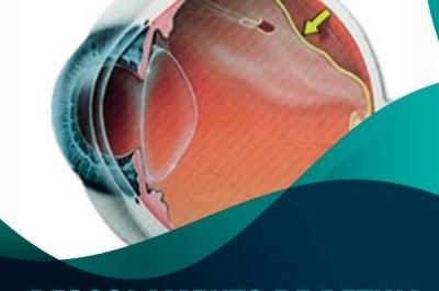 Descolamento de Retina