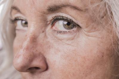 Catarata: Uma das principais causas de cegueira. Fique atento!